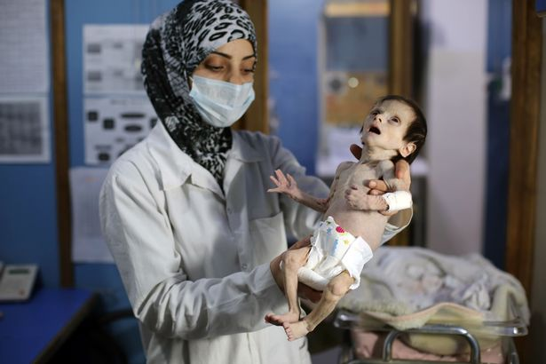 CORRECTION-A-Syrian-infant-suffering-f