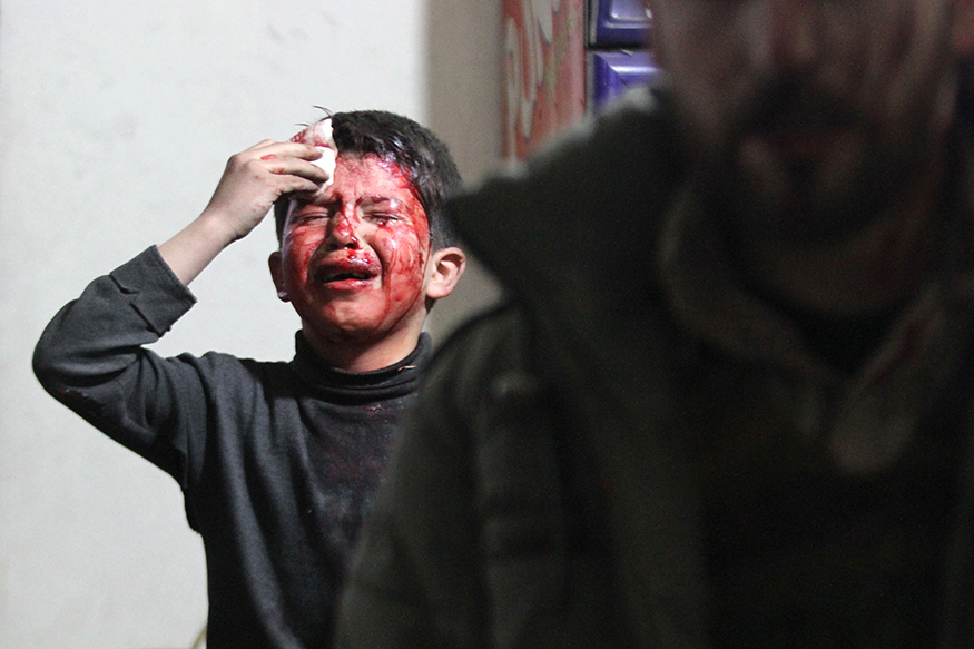 An injured boy reacts in a field hospital after what activists said were air strikes by forces loyal to Syria's President Bashar al-Assad in the Douma neighbourhood of Damascus