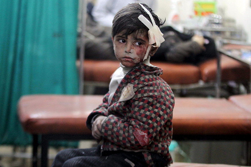 An injured boy waits inside a field hospital after what activists said were air strikes and shelling by forces loyal to Syria's President Bashar al-Assad in the Douma neighborhood of Damascus